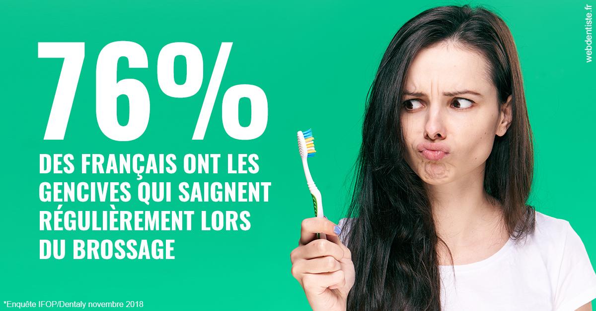 https://dr-abbou-michel.chirurgiens-dentistes.fr/76% des Français 1